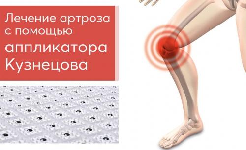 Лечение артроза с помощью аппликатора Кузнецова