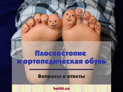 Плоскостопие и ортопедическая обувь: полный сборник вопросов и ответов